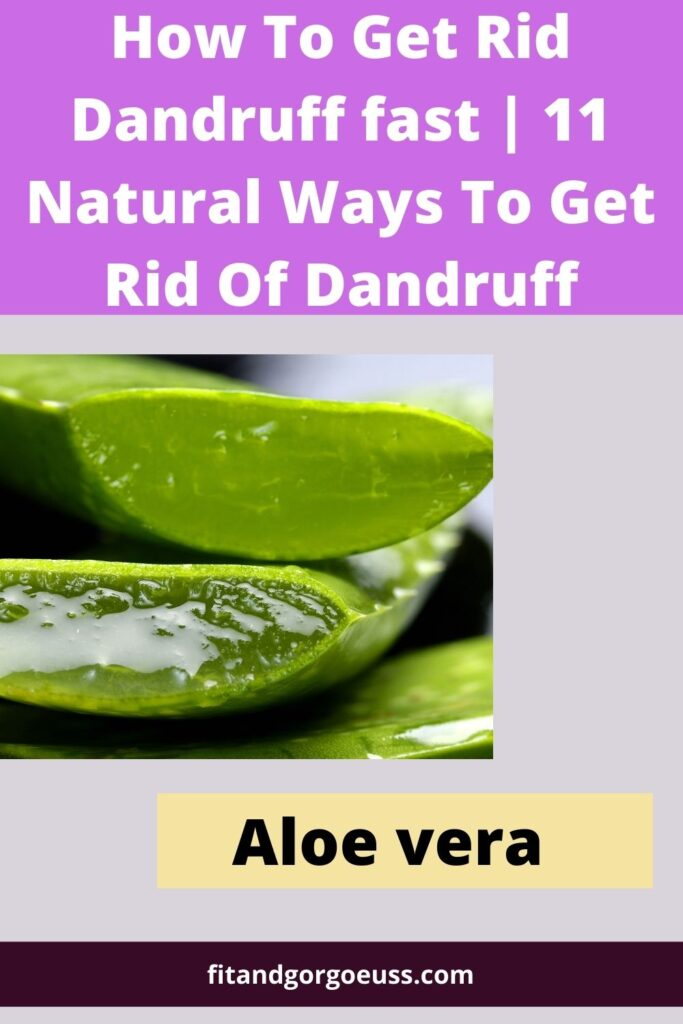 How To Get Rid Dandruff fast | 11 Natural Ways To Get Rid Of Dandruff